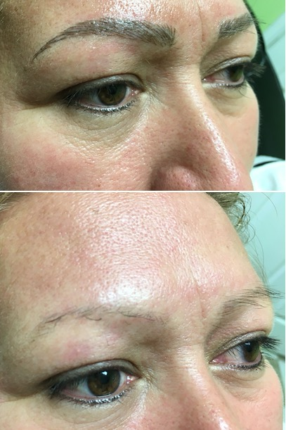 Before and after photo of microblading eyebrows