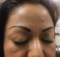 Permanent Makeupprocedures